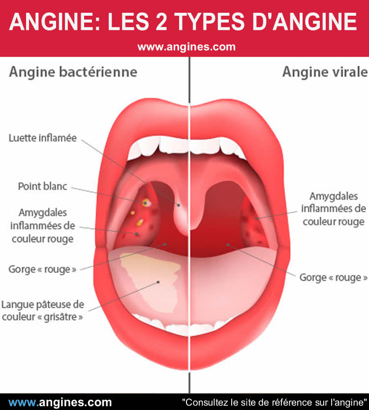 Angine : Angine bactérienne et angine virale